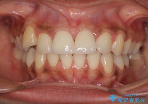 継ぎ接ぎだらけで歯肉も腫れてしまった前歯 オールセラミックの審美歯科治療の治療後