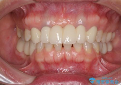飛行機を利用しての通院 気になる所を全て治療する総合歯科治療の症例 治療後