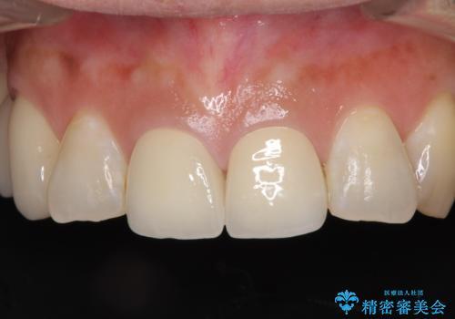 不調和な前歯の審美歯科治療の治療後