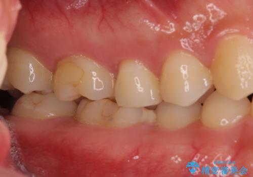 他院で治療中の歯 ゴールドインレーによる修復治療の治療前