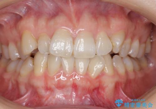 ハーフリンガル 犬歯のねじれ 歯根の外部吸収している歯を抜歯の症例 治療前