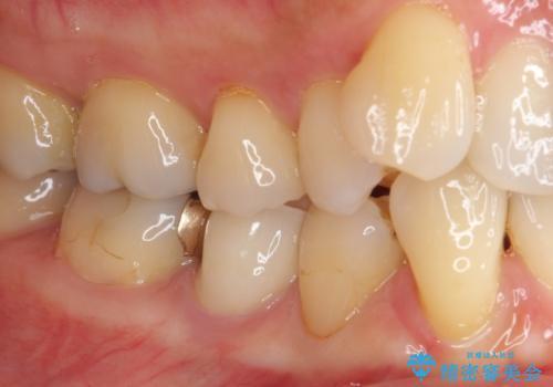 歯に穴があいた 奥歯のセラミック治療の治療後