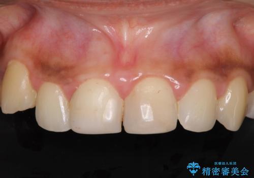 継ぎ接ぎだらけで歯肉も腫れてしまった前歯 オールセラミックの審美歯科治療の治療前