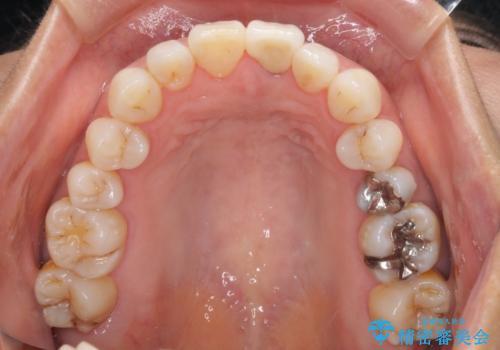 変色した前歯が気になる オールセラミッククラウンの治療後
