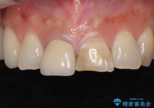 不調和な前歯の審美歯科治療の治療前