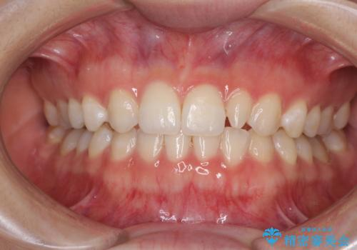 海外転居前に気になる前歯を整えたい 上下前歯の部分矯正の症例 治療後