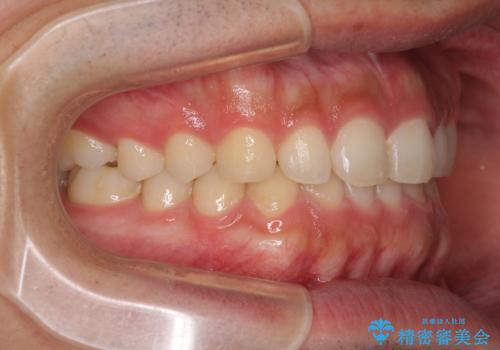 インビザラインによる、すきっ歯の改善の治療後
