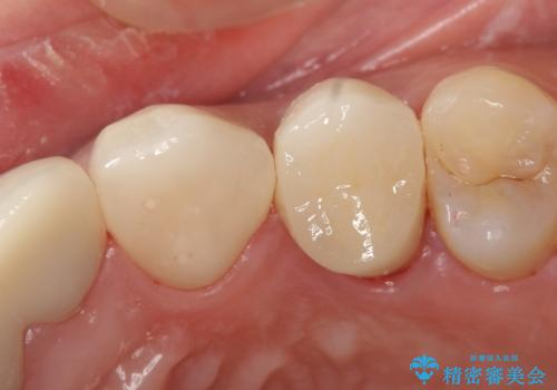オールセラミッククラウン 歯牙の挺出後の補綴の症例 治療後