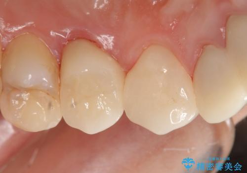 オールセラミッククラウン 歯牙の挺出後の補綴の治療後