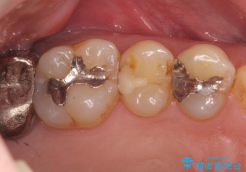 精密なむし歯の治療 ゴールドインレーの治療前