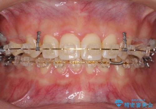 前歯のすきま 右上の小臼歯の垂直的骨吸収を抜歯で解決の治療中