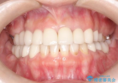 セラミックと矯正を併用してきれいな前歯への症例 治療後