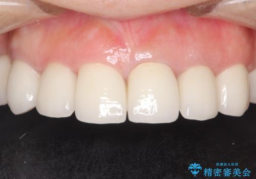 セラミックと矯正を併用してきれいな前歯への治療後