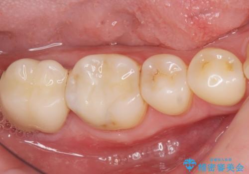 奥歯に違和感がある 30代男性の症例 治療後