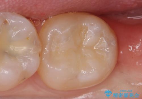 セラミックインレー 古い銀歯の治療の治療後