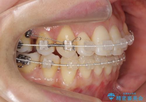 前歯で引っ込んでいる歯がある 他院で矯正200万と言われたの治療中