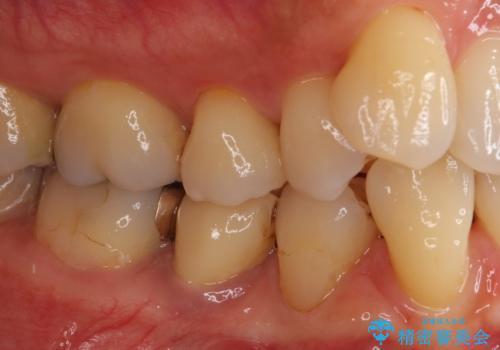 歯に穴があいた 奥歯のセラミック治療の治療前