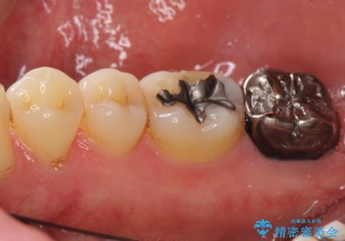 奥歯に違和感がある 30代男性の治療前
