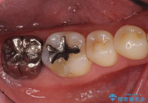 奥歯に違和感がある 30代男性の症例 治療前