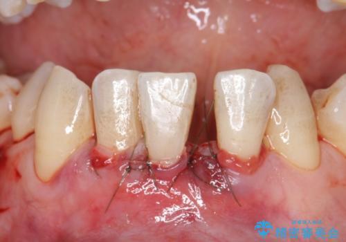 歯肉移植 矯正前の歯肉退縮の改善および予防の治療中