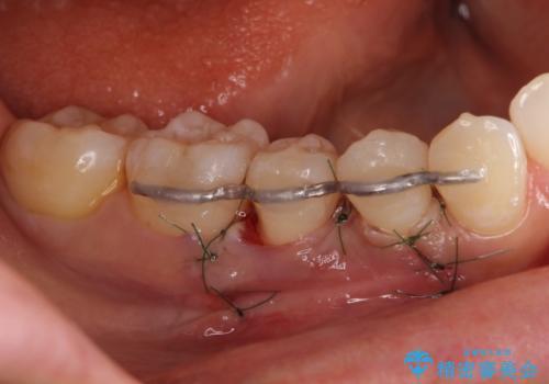 このままでは抜歯と言われた 失われた骨の再生治療 の治療中