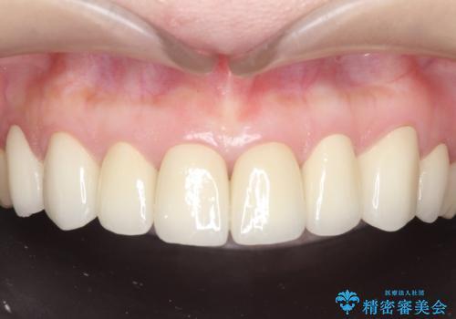 オールセラミッククラウン 前歯部の見た目の改善の治療後