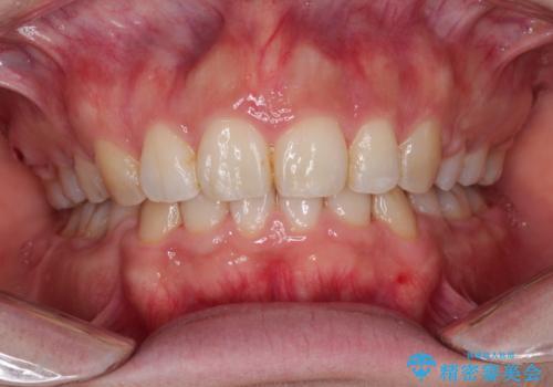 がたがたと出っ歯を直したい ワイヤーによる抜歯矯正の症例 治療後