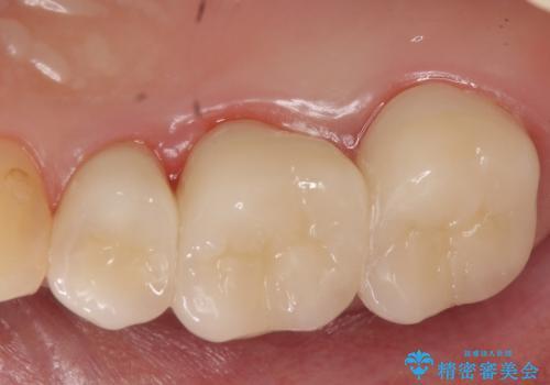 オールセラミッククラウン 根管治療 奥歯の補綴の治療後