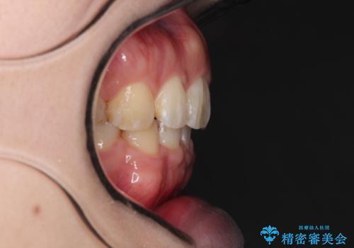 がたがたと出っ歯を直したい ワイヤーによる抜歯矯正の治療後