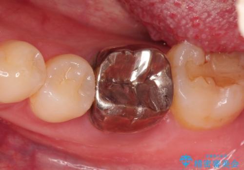 銀歯を白くしたい セラミッククラウンの治療前