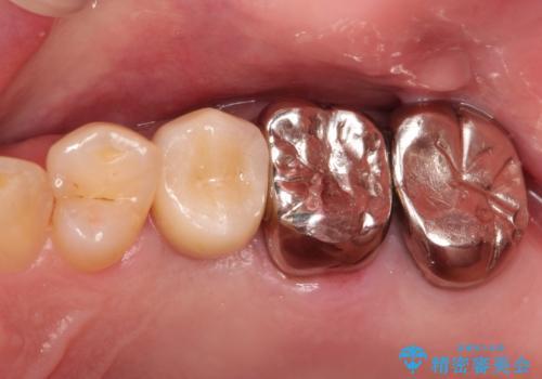 小臼歯部のインプラントの治療後