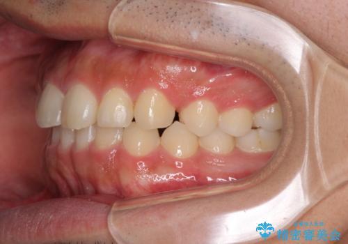 インビザラインによる、すきっ歯の改善の治療中