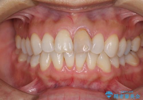 変色した前歯が気になる オールセラミッククラウンの治療前