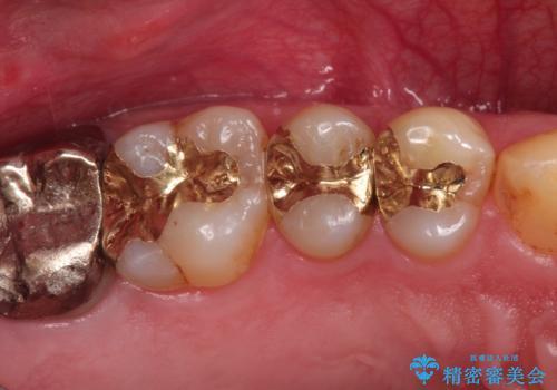 精密なむし歯の治療 ゴールドインレーの治療後
