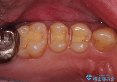 精密なむし歯の治療 ゴールドインレーの治療中