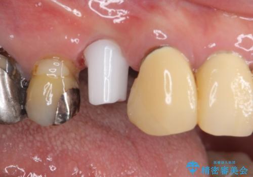 小臼歯の審美治療 ストローマンインプラントとカスタムアバットメントの治療中