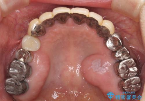 小臼歯の審美治療 ストローマンインプラントとカスタムアバットメントの治療後