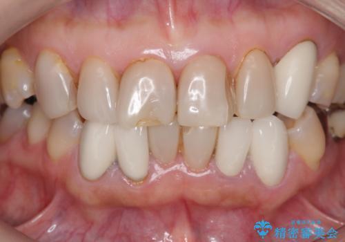 オールセラミッククラウン 前歯部の見た目の改善の治療前
