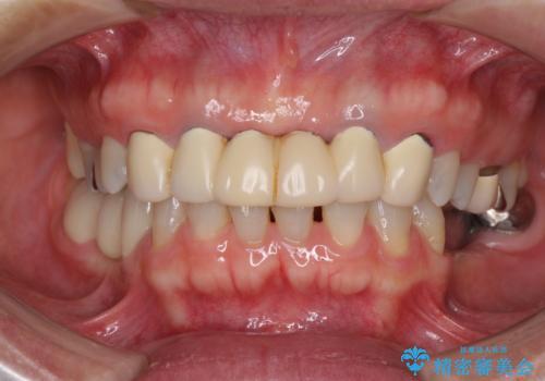 飛行機を利用しての通院 気になる所を全て治療する総合歯科治療の症例 治療前