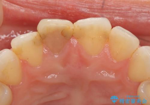オールセラミッククラウン(スペシャル) 変色が気になる前歯部の補綴の治療前