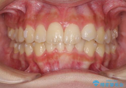 前歯のガタガタを目立たない装置でなおしたい インビザラインによる目立たない矯正の治療中