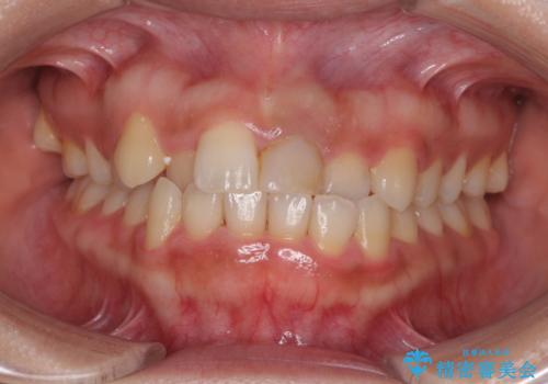 前歯の反対咬合 非抜歯のワイヤー矯正の治療前