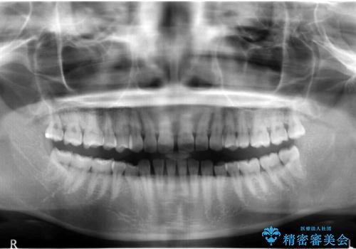 前歯のすきま 右上の小臼歯の垂直的骨吸収を抜歯で解決の治療前
