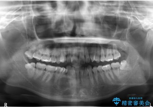 ハーフリンガル 犬歯のねじれ 歯根の外部吸収している歯を抜歯の治療前