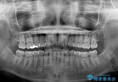 海外転居前に気になる前歯を整えたい 上下前歯の部分矯正の治療後