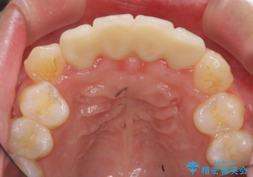 仮歯のまま放置してしまった 審美を改善したいの治療後