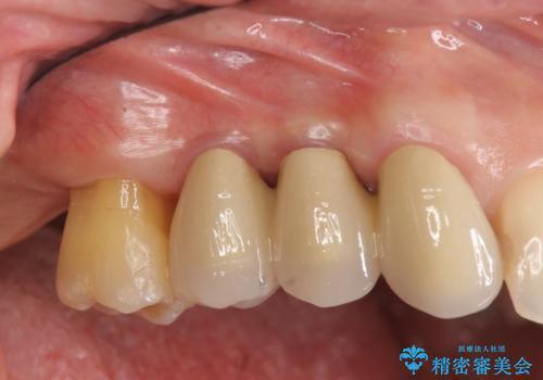 部分矯正を含む 歯周病治療 (再生治療・歯周ポケット除去・MTM・連結補綴)の症例 治療後