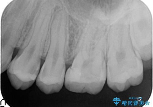 精密なむし歯の治療 セラミックインレーの治療前
