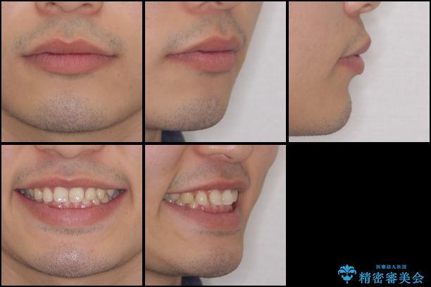 インビザラインによる、すきっ歯の改善の治療前(顔貌)