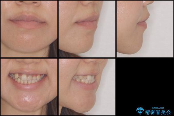 前歯の反対咬合 非抜歯のワイヤー矯正の治療前(顔貌)